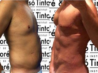 Antes y después Lipogym 4D, lipoescultura de alta definición