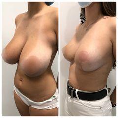 Reducción de senos - Tintoré & Brasó