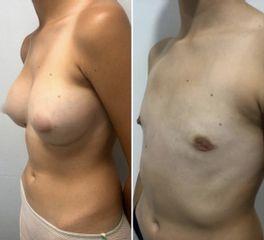 Cirugía transgénero - Tintoré & Brasó