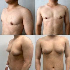 Cirugía transgénero, masculinización - Tintoré & Brasó