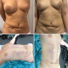 Abdominoplastia y cirugía constructiva - Tintoré & Brasó