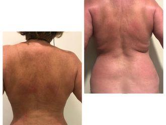 Liposucción-740633
