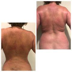 Lipofit4D, espalda y cintura - Tintoré & Brasó