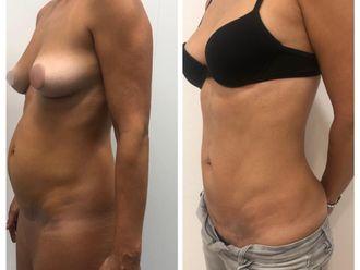 Abdominoplastia - 740634