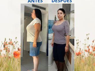 Tratamiento obesidad-739723
