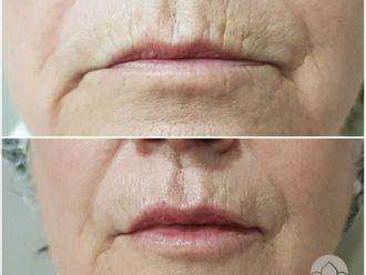 Aumento labios-648232