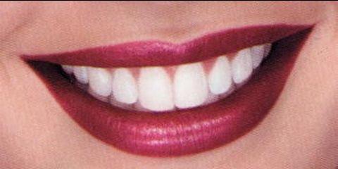 Blanqueamiento denta