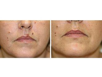 Dermatología-501255