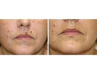 Antes y después Eliminación de verrugas con láser