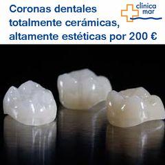 Coronas cerámicas