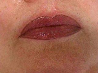 Micropigmentación de labios y relleno de color en mucosa
