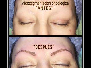 Micropigmentación oncológica