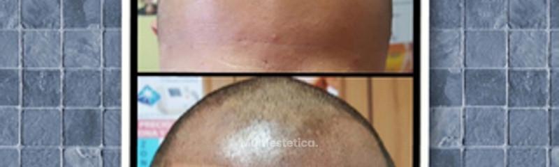 Micropigmentación capilar masculina