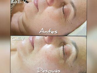Rejuvenecimiento facial-610356