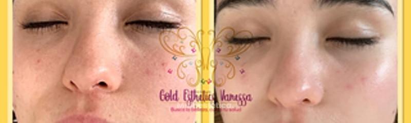 Gold Esthetics Vanessa