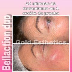 Antes y después eliminación arrugas