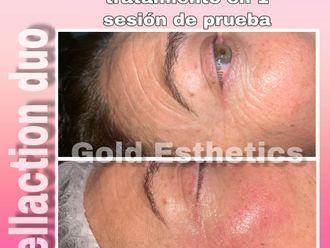 Eliminación arrugas-644012