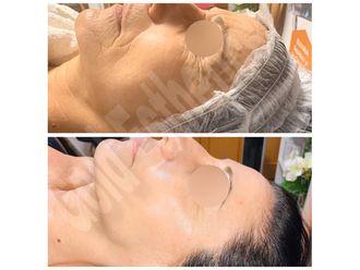Tratamientos estéticos-649738