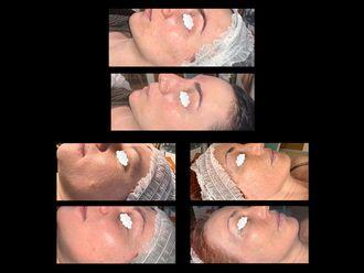 Rejuvenecimiento facial-649739