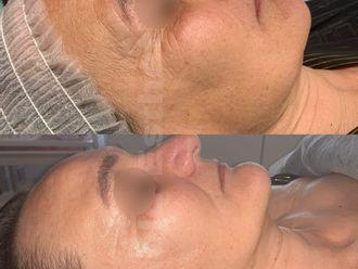 Radiofrecuencia facial-788363