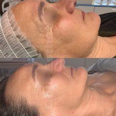 Radiofrecuencia facial - Gold Esthetics Vanessa