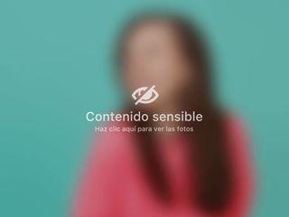 Radiofrecuencia - Gold Esthetics Vanessa