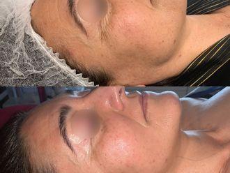 Radiofrecuencia facial-788367