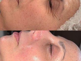 Eliminación arrugas-791234