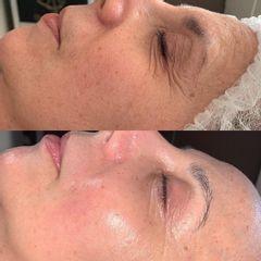 Eliminación de arrugas - Gold Esthetics Vanessa