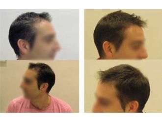 Alopecia - 622937