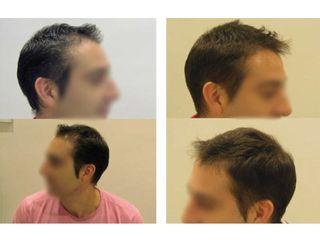 Tratamiento Capilaxis: antes y después