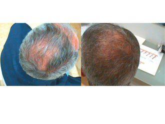 Alopecia - 622938