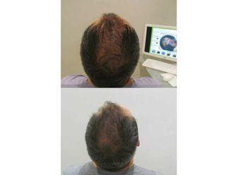 Alopecia - 622940