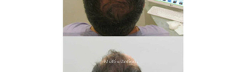 Tratamiento Láser Capilar: antes y después