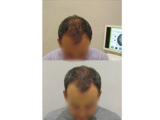 Alopecia - 622941