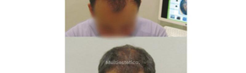 Tratamiento Láser Capilar Hombre: antes y después