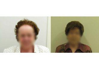 Alopecia - 622946