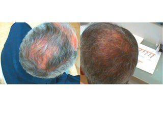 Antes y después Multiterapia (Láser y PRP)