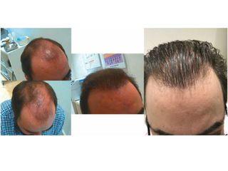 Microinjerto: antes y después