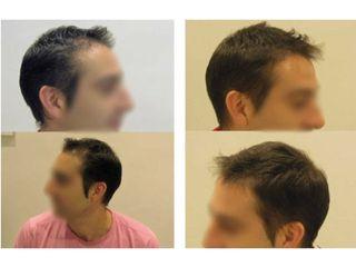 Antes y después Tratamiento Capilar Hombre con Minoxidil