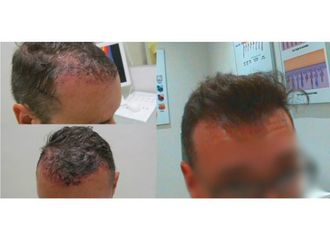 Alopecia-648387