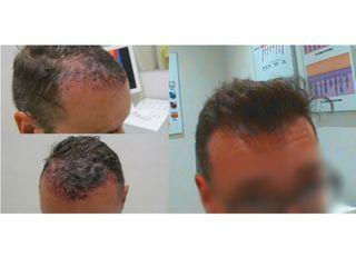 Antes y después Microinjerto Capilar