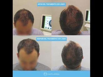 Tratamiento capilar - 739993