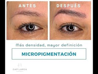 Micropigmentación.jpg