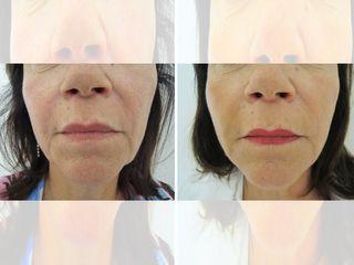 Corrección del tercio inferior del rostro
