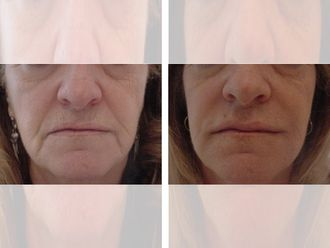 Rellenos faciales-644704