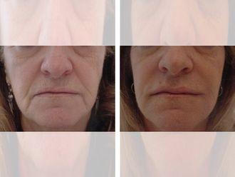 Rellenos faciales - 644704