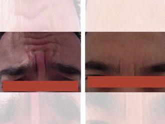 Medicina estética-644706