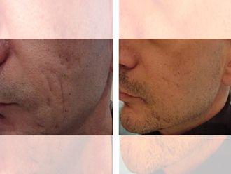 Corrección cicatrices - 644708