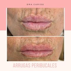 Aumento de labios - Clínica Came